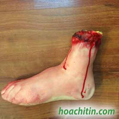 Bàn chân máu